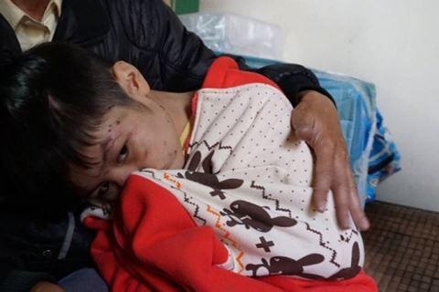 Bố đẻ bạo hành cháu bé 9 tuổi ở Hà Nội có thể bị phạt tù tới 3 năm